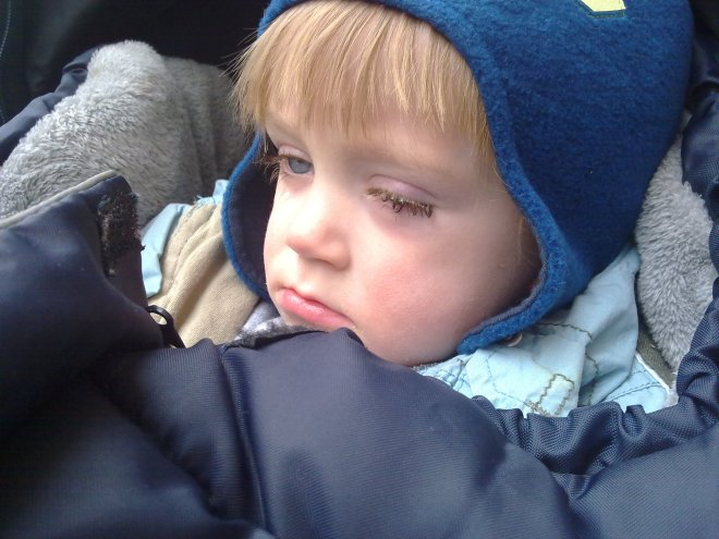 Strolling around all bundled up and with an eye infection :(